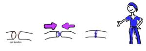 sutur flex